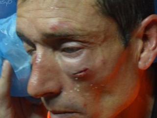 Salvaje agresión de hinchas a un árbitro en el Ascenso de Argentina