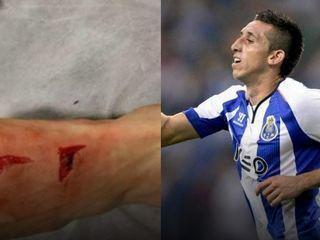 ¡ESCALOFRIANTE! La brutal entrada que recibió Héctor Herrera contra la Juventus