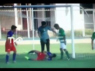 Futbolista terminó con fractura de cráneo tras recibir brutal patada