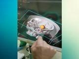 El HEU realizará a partir de este lunes, cirugías con el Neuronavegador